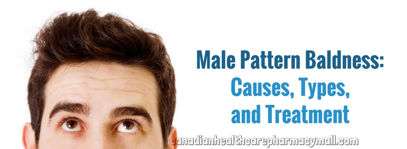 Male Pattern Baldness Causes Types And Treatment Pharmacy Mall Mesmerizing Male Pattern Baldness Causes